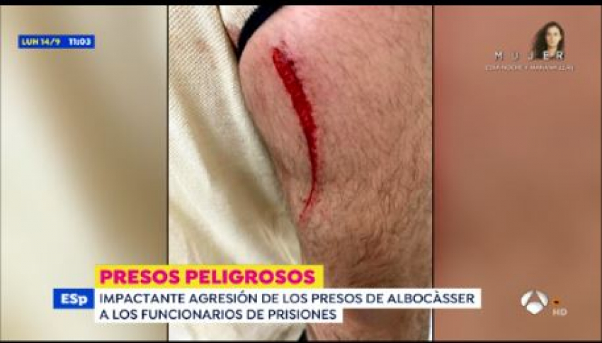 Reportaje Antena 3 agresión a funcionarios en C.P Albocasser