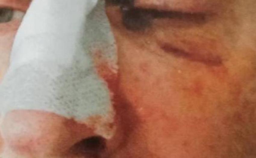 Denuncian una agresión a un funcionario de la prisión de Asturias que tuvo que salir en ambulancia