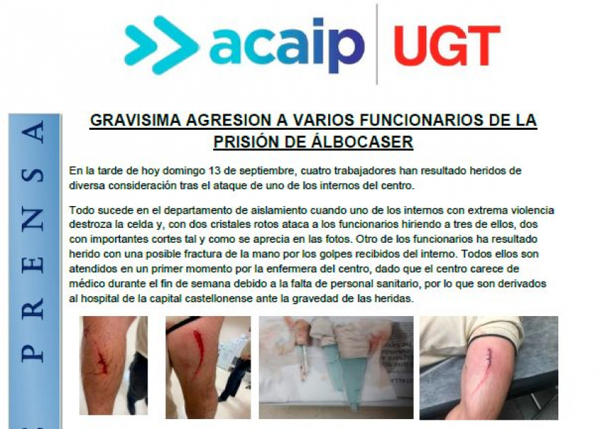 Gravisima agresión a varios funcionarios en Albocasser